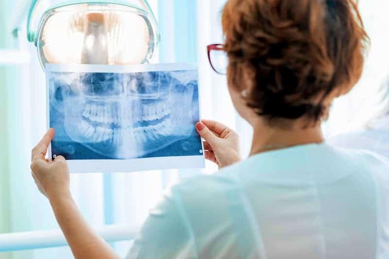 a-dentist-examines-orthopantomogram-in-her-hands